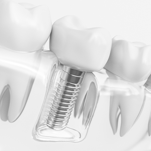 Animation of dental implant supported tooth