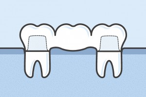 A crown and bridge in Falls City is a great way to replace several missing teeth in a row.