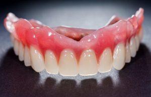 A top row of dentures.