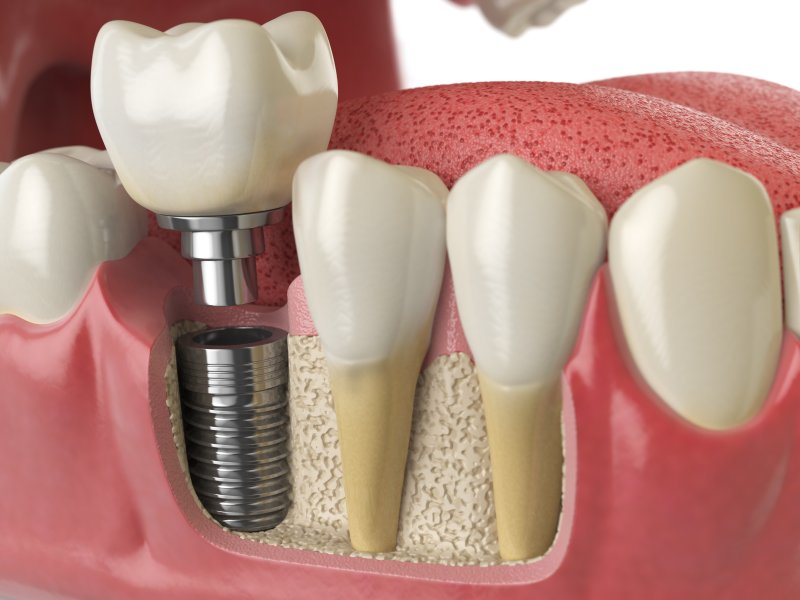 Illustration of dental implants in Falls City