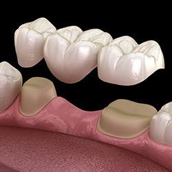 Crown and bridge using one visit dentistry.